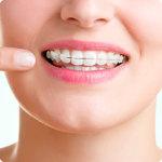 Apart na zębach